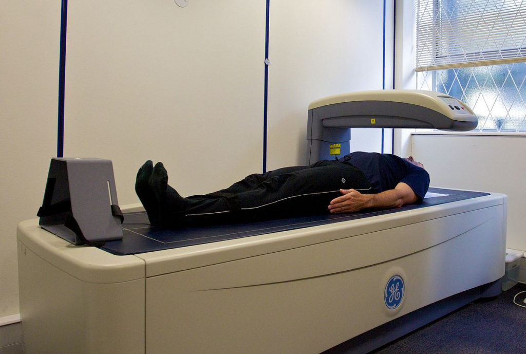 a male patient getting a DEXA scan